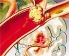 心房颤动病例分析