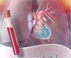 心房颤动的危害和治疗方法